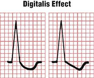 Дигиталисная интоксикация симптомы