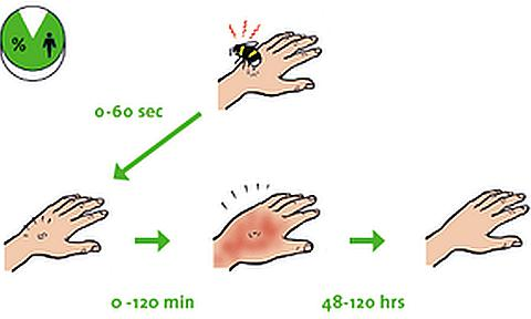 Симптомы при укусе осы