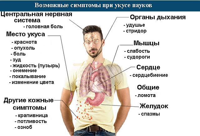 возможные симптомы при укусе пауков