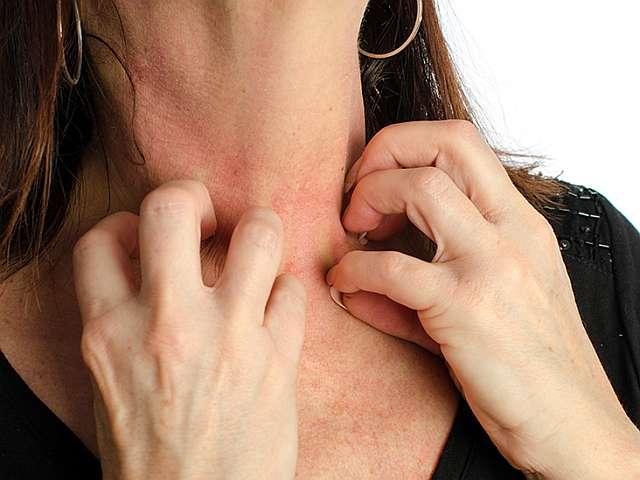 Сыпь и затруднение дыхания при анафилаксии