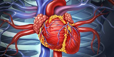 Инфаркт миокарда и не диагностированный диабет