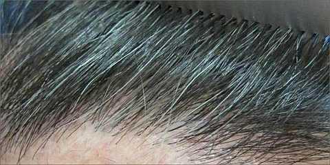 Анализ канабинола в волосах